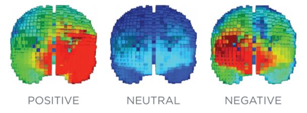 3 brains scans