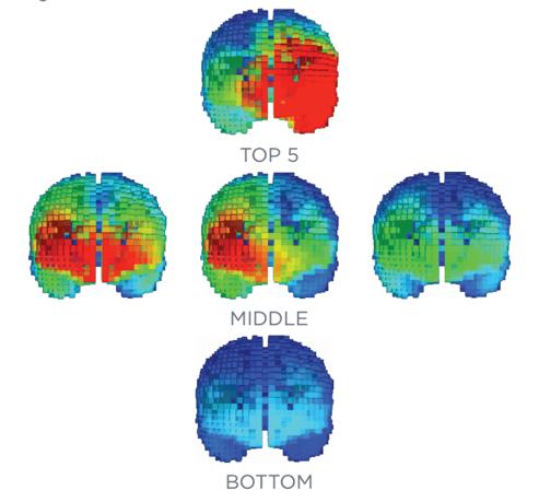 5 brain scans